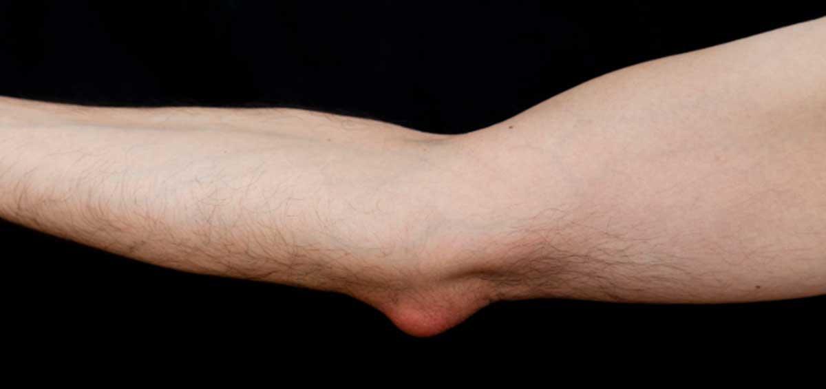 Alleviate bursitis with chiropractic care