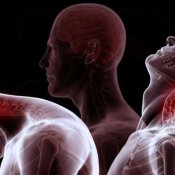Chiropractors Can Treat Whiplash
